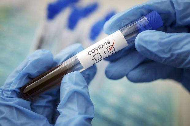 Dünyada koronavirusdan sağalanların sayı 13 milyonu keçdi -